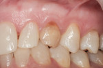 Figure 1 Preoperative view of over-retained tooth No. H, with healthy, broad zone of attached gingiva.