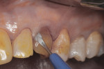 Figure 10 Use of microsurgical straight blade to sever attachment and begin atraumatic extraction of tooth No. H; yellow coloration of teeth was due to povidone/iodine disinfection of operative field.