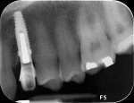 Figure 24 Radiographic view of implant and abutment at 14 weeks, verifying osseointegration; maintenance of crestal bone with some peri-abutment widening was evident.