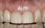 Figure 3 Gingival margin levels shown 2 months after immediate placement and provisionalization.