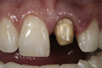 Figure 11  Final preparation after gingival healing.