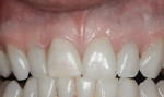 Figure 26 Final view 8 years after treatment. The gingival level and dimensions were stable.