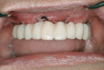 Figure 4 Provisional restoration in place immediately after implant placement.