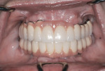 Figure 10 Esthetic result of the prosthesis 2 years after immediate loading.