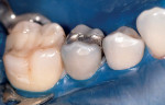 Figure 1  Preoperative photograph of the tooth to be restored. Considerable caries associated with the amalgam dictated restoration with a full crown.