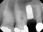 Figure 28 Radiograph immediately after surgery.