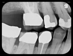 Figure 5 Five radiographs taken with flexible phosphor sensors despite the patient's severely restricted ability to open his mouth. Right-side bitewing (Fig 4). Left-side bitewing (Fig 5). Mandibular anteriors (Fig 6). Maxillary anteriors (Fig 7). Maxillary right premolar/molar area (Fig 8).