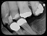 Figure 4 Five radiographs taken with flexible phosphor sensors despite the patient's severely restricted ability to open his mouth. Right-side bitewing (Fig 4). Left-side bitewing (Fig 5). Mandibular anteriors (Fig 6). Maxillary anteriors (Fig 7). Maxillary right premolar/molar area (Fig 8).