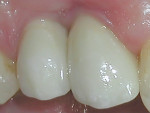 Figure 9 The restorations at 5 weeks showing continued gingival maturation.