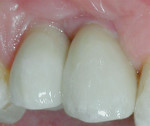 Figure 8 The definitive restorations 2 weeks after cementation. Note the significant soft-tissue development.