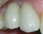 Figure 7 The definitive restorations after cementation.