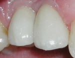 Figure 10 The restorations after 12 weeks revealing a further refined gingival architecture.
