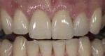 Figure 9  Preoperative and postoperative views of Vita VM9 porcelain and Lava crowns on teeth Nos. 8 and 9. On tooth No. 10 there is a porcelain veneer made with VM9 porcelain in which no tooth preparation was done.
