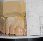 Figure 7. By setting the platform on the articulator, the dental technician can wax first the maxillary incisors and cuspid to the appropriate length, and then wax the posterior teeth to level the occlusal plane where possible.