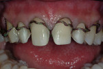 Figure 5  The #1 cord is teased out of the gingival sulcus and the quality of the retraction is evaluated.