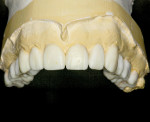 Figure 5. Maxillary diagnostic wax-up.