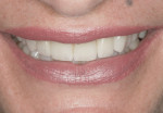 Figure 15. Smile view of completed restorations.
