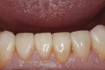 Figure 11. Severely worn lower anterior teeth were restored and showed excellent tissue health.