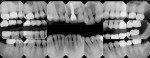 Figure 12. Postoperative full-mouth radiographs.