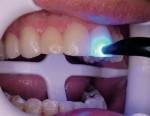 Figure 7  LUMINEERS placed on the 8 teeth and tack cured with 2 mm Sapphire tip.