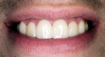 Figure 16  Postoperative smile with noninvasive LUMINEERS.