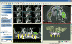 Figure 2  SimPlant® by Materialise Dental is a CT-based implant treatment planningsoftware system that will revolutionize any implant practice.