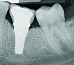Figure 5 Radiograph of a mandibular right first molar implant in a 31-year-old woman taken 1 year after placement. No bone loss beyond physiologic remodeling has occurred; there is a suggestion of possible cement at the distal.