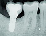 Figure 11 Radiograph taken 1 year after regenerative therapy suggests favorable bone gain covering the entire roughened surface of the dental implant.