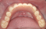 Figure 6 Overdenture seated on LOCATOR Attachments