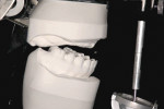 Figure 6 Mounted edentulous maxillary casts should be used in initial assessment of possible treatment scenarios. A fifth important factor that is part of the dimensional assessment is the restorative dimension, that is visible when casts are properly mounted. Note the class III maxilliomandibular relationship and the limited posterior restorative dimension that challenges this scenario.