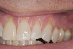 Figure 1 Preoperative view showing significant gingival recession on teeth No. 8 through No. 14.