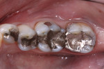 Figure 2 Occlusal view of failing amalgam restorations.