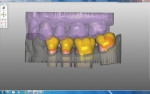 Figure 4 The software is used to adjust for occlusion and contacts instead of a model.