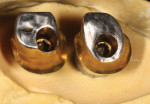 Figure 4. Clinical implant screws are carefully engineered to ensure proper preload, tension, and torque levels. The contamination of these screws will negatively affect their reliability.