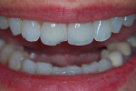 Figure 1. Seated chipped crown.