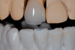 Figure 8. Close-up of incisal edge that could be addressed.