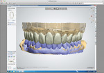 Figure 2. Full-contour digital design using 3Shape software. The blue on the mandibular arch shows the provisional restorations. The upper arch shows the final design.