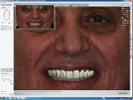 Figure 5. Facial photos of the patient are superimposed over the digital design to check facial orientation and esthetic considerations. The teeth are active and can be moved in this view.