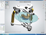 Figure 4. Occlusion and excursive movements are checked on an articulator. Interferences can be cleared with an auto-adjust feature or manually to give the technician full control of the final outcome.