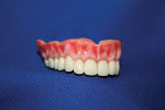 Figure 8. Finished temporary denture.