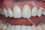 Figure 21  The restoration was designed to allow the patient to be able to remove plaque and debris accumulating at the soft tissue-restorative interface. Floss must pass readily through the contacts and over the flat or convex apical areas to be abl
