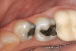 Figure 1  Faulty amalgam restorations with decay.