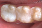 Figure 7d  Seated molar indirect in-officecomposite onlay restorations and direct premolarcomposite restoration.