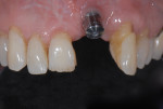 Figure 5 Removal of the restoration further reveals improper implant position from mesial, buccal, lingual, coronal, and angulation perspectives.
