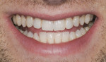 Figure 1 A 26-year old man presented with congenitally missing maxillary lateral incisors and both over-retained deciduous teeth.