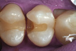 Figure 2  After isolation, the defective restorationwas removed, and the preparation was modifiedto remove the recurrent caries. Note theovercontouring of the composite restoration intooth No. 4 and how this helped to create a concavityin the distopr
