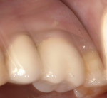 Figure 6 Mirror view of restored replacement implant with buccal fistula draining near the mucogingival junction.