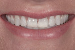 Figure 1 The full-smile pretreatment photograph demonstrated the deficient incisor length due to wear.