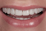 Figure 12 A full smile revealed incisors' length that was no longer deficient.