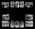 Figure 1 Full-mouth periapical x-rays revealing generalized severe horizontal bone loss in the maxilla and the mandible.